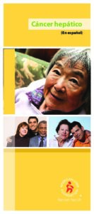 Liver Cancer Brochure (Spanish)