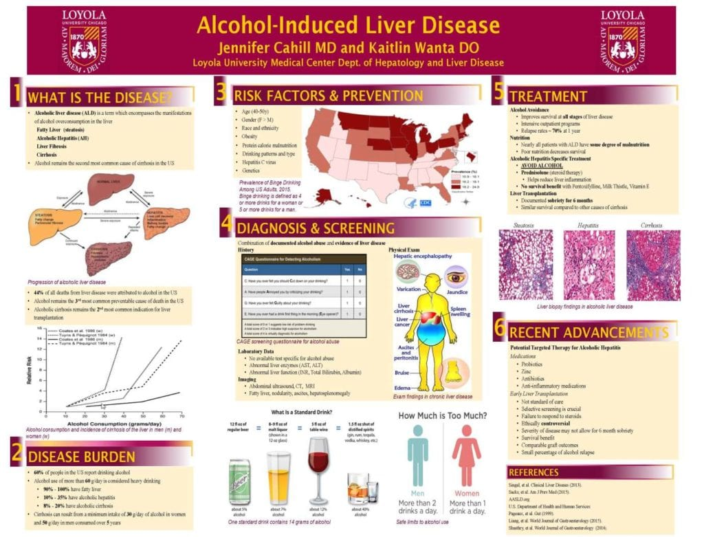 Journeys Poster: Alcohol-Induced Liver Disease