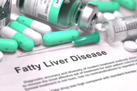 The Facts About Non-Alcoholic Fatty Liver Disease