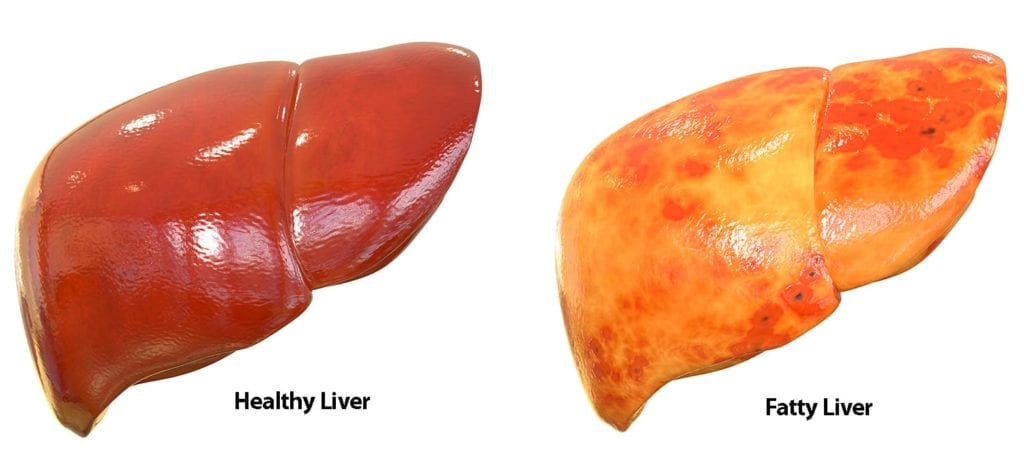 Healthy Liver v. Fatty Liver